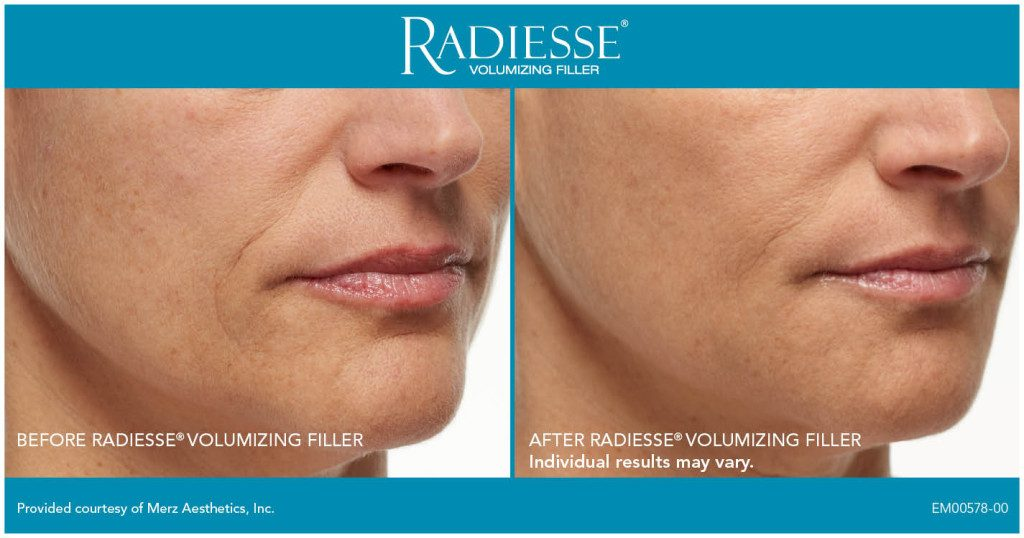 Clinique-du-lac-geneva-cosmetic-center-before-after-injections-radiesse